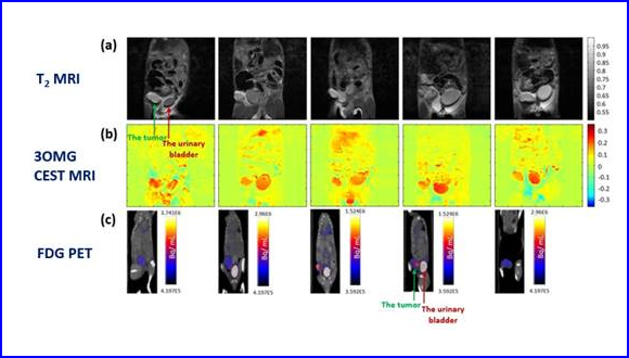 Molecular imaging of tumors by chemical exchange saturation transfer MRI of glucose analogs