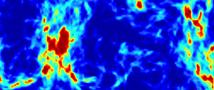 "Search for First Stars Uncovers ""Dark Matter"""